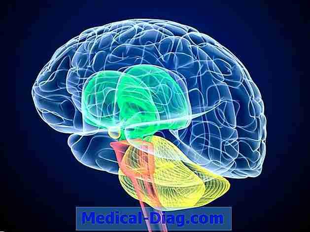 Alzheimer Ist Mit Ungesättigten Fettsäuren Im Gehirn Verbunden ...