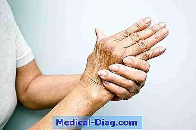 hur skiljer artros av reumatoid artrit