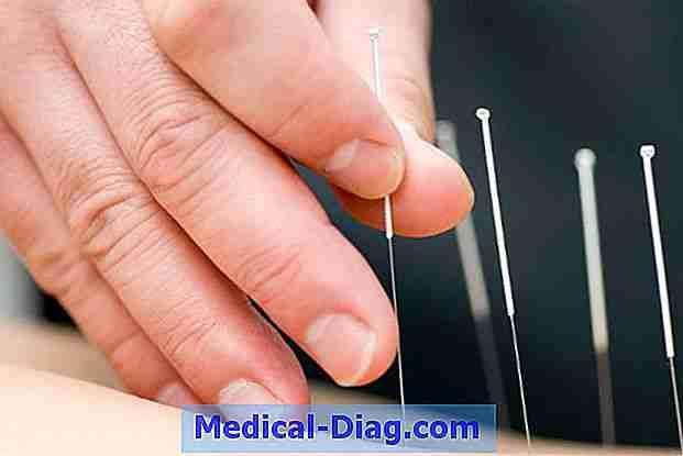 dosage and regimen