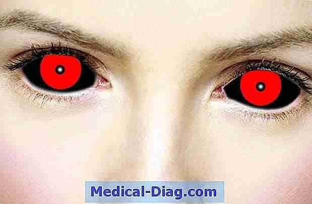 irriterede øjne allergi