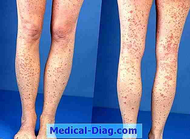 Plaque psoriasis: symptomen en behandeling