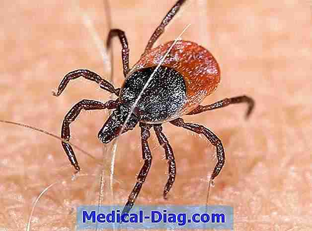 Colorado tick feber: symptomer, behandling og forebyggelse