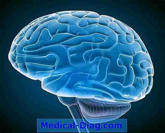 hvordan påvirker alzheimers hjernen