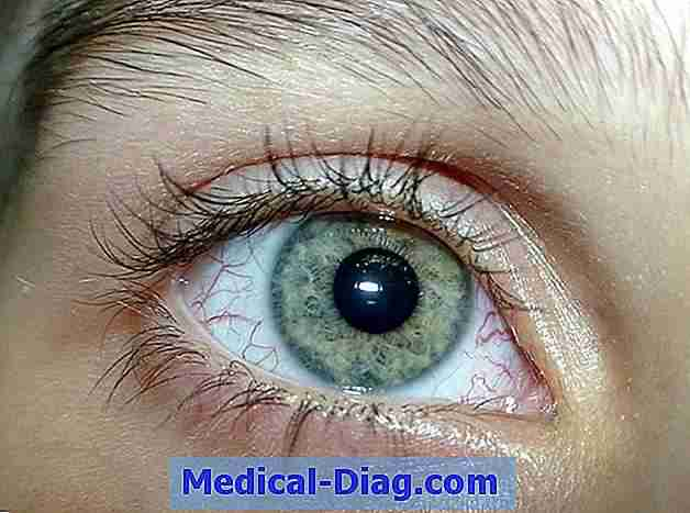 ataxia-causes-symptoms-and-treatments.jpg