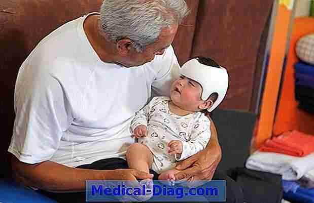 Helm-Therapie Für Säugling Position Schädel Verformung \'Sollte ...