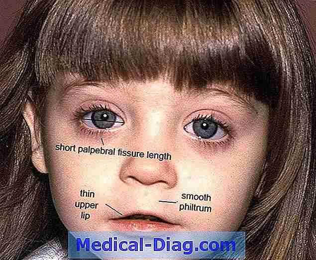 Magnifiek Williams Syndroom: Kenmerken, Diagnose En Vooruitzichten (Medical @FD92