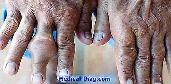 reumatoid artrit symptomer