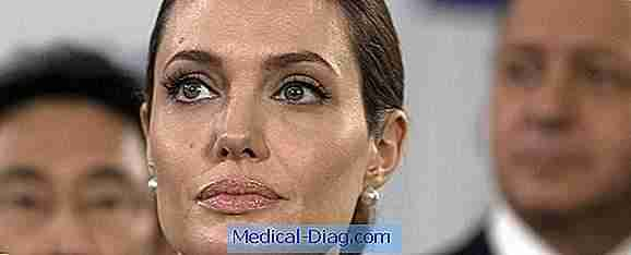 Angelina jolie a une double mastectomie en raison de 87% du risque de cancer du sein