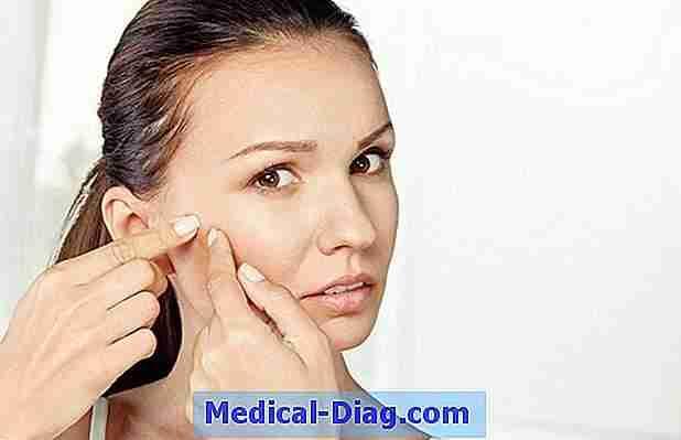 acné kystique causes