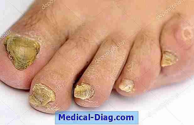 infection fongique symptomes