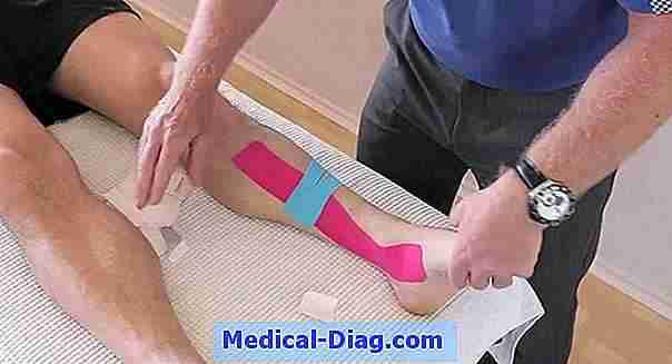 Achilles tendinite: causes, symptômes, traitements