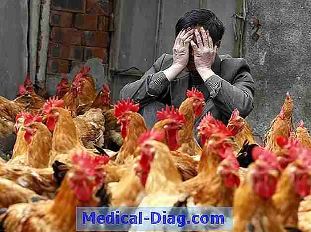 H7n9 virus gekenmerkt door imaging findings