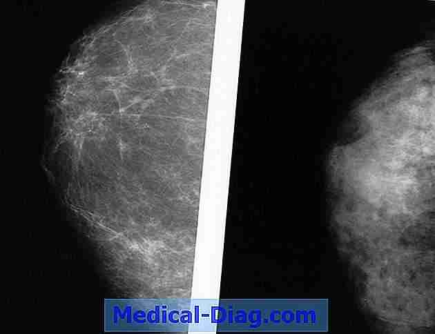 Mammogram reading assisted by computer is effectief