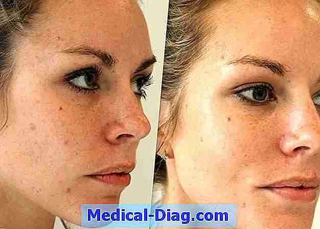 Anti wrinkle injections dysport ou botox - lequel gagne?