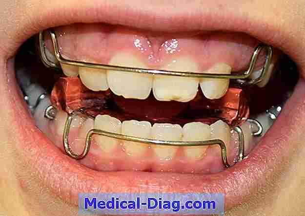 Orthodontie: wat is orthodontie?