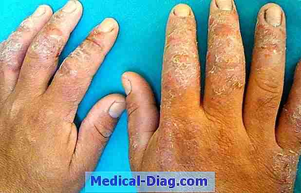 Latex allergi: symptomer, diagnose, behandlinger
