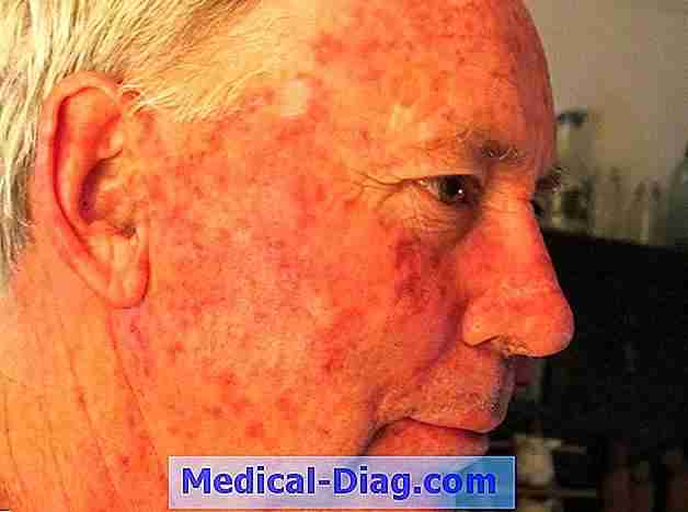 Basal cell carcinoma fjernet fra california governor's nose