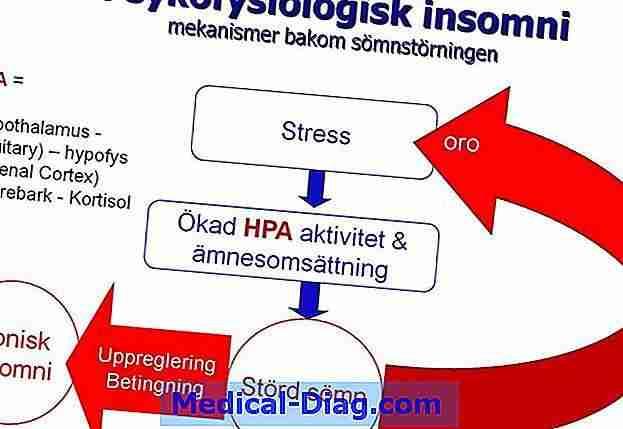 stress kognitiv terapi