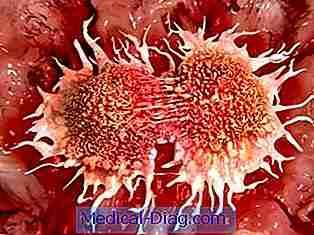 spredning af kræft