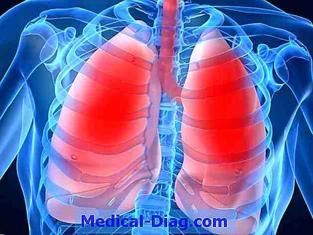 cystisk fibros livslängd