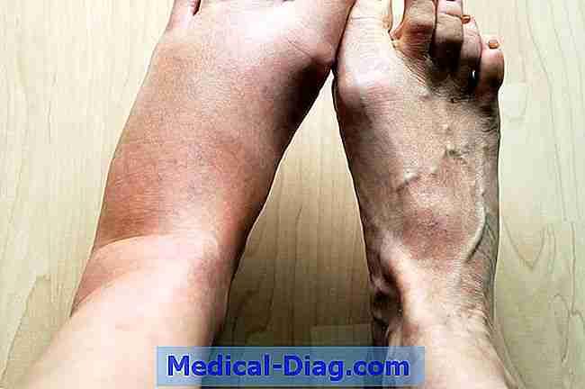 stickningar i ben och armar