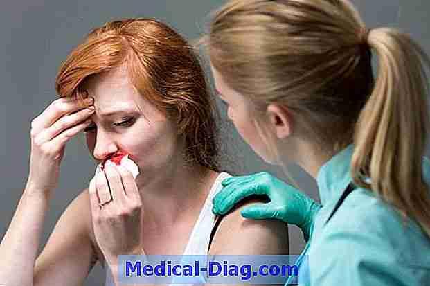 næseblod og stress