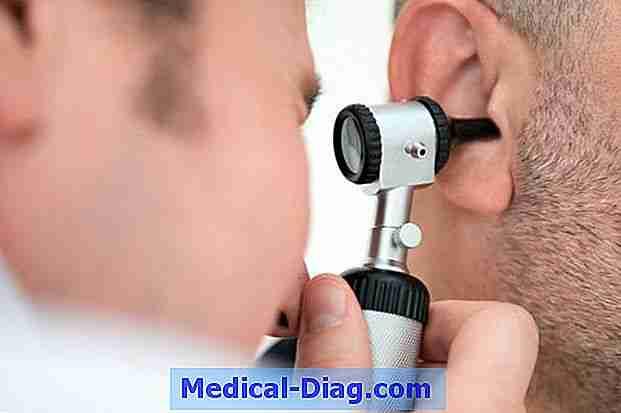 psoriasis oreille traitement