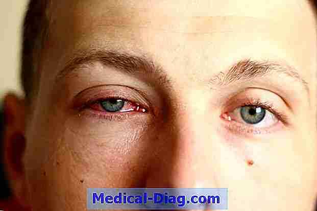 stikkende smerter i øjnene