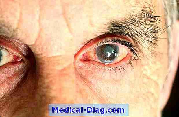 smärta bakom ögat
