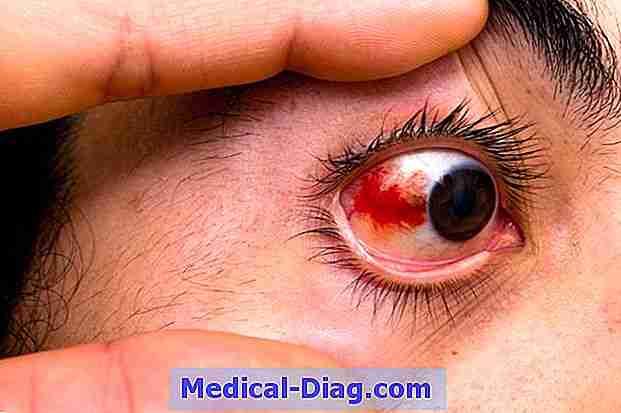 blodsprængning i øjet