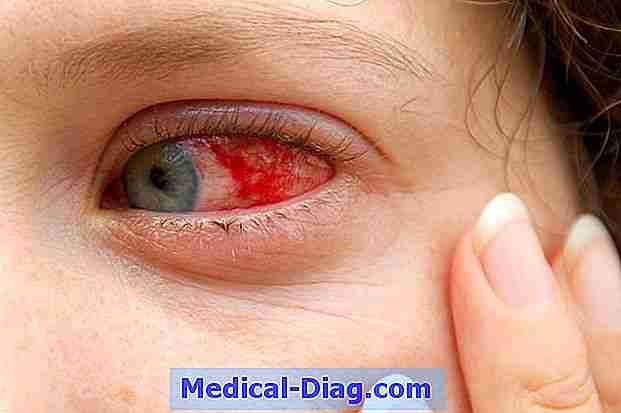 blodfläck i ögat
