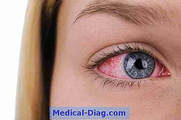 huvudvärk i ögonen