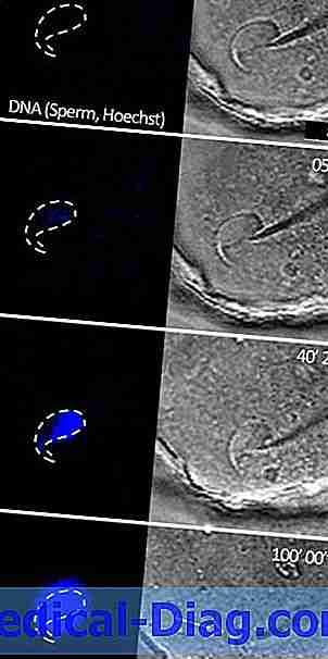 sperm fertiliserende æg symptomer
