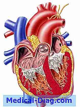 Herzinsuffizienz: Fehlerhaftes Geschlecht Von 1 Prozent Der Menschen ...