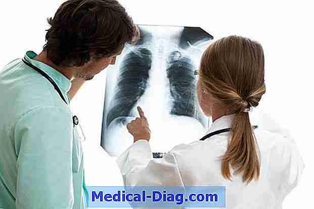 komplikationer efter lunginflammation