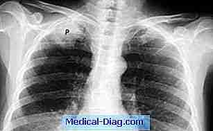 förändringar på lungan efter lunginflammation