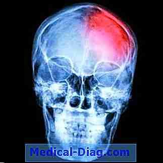 stroke förlamning vänster sida